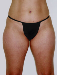 Body Liposuction Before and After Pictures Greensboro, NC