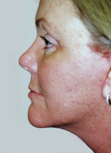 Facelift Before and After Pictures Greensboro, NC
