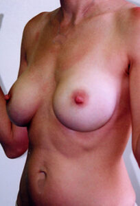 Breast Augmentation Before and After Pictures Greensboro, NC