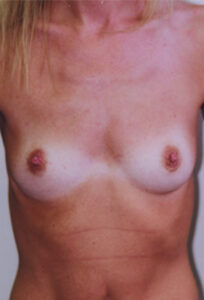 Breast Augmentation Before and After Pictures Fayetteville, NC