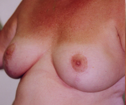 Breast Lift Before and After Pictures Greensboro, NC