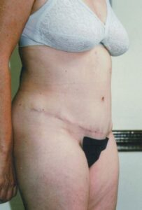 Tummy Tuck Before and After Pictures Greensboro, NC